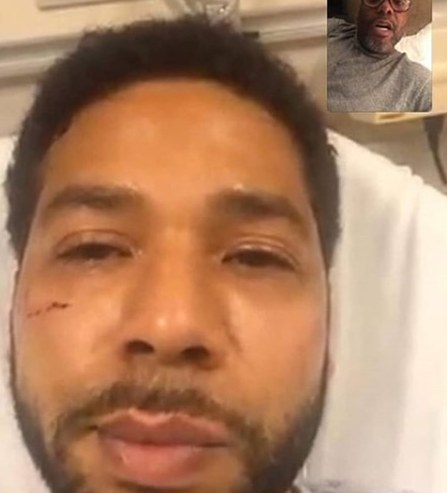 Jussie's attack mirrors a glimpse of similar anti-LGBTIQ+ brutality in Africa